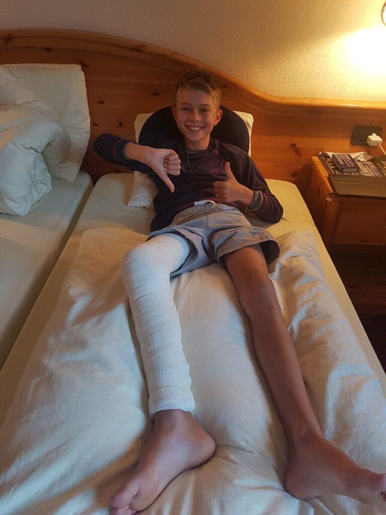 Jongetje met been in het gips